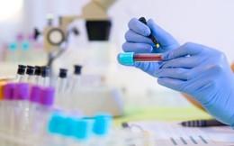 Xét nghiệm phát hiện 3 loại ung thư đường tiêu hóa dễ mắc phải