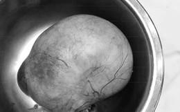 Người phụ nữ suýt tử vong vì khối u nang buồng trứng 'khổng lồ' vì sợ dao kéo