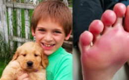 Bàn chân bé trai bỏng độ 2, đau đớn chẳng thể đi lại, bác sĩ kết luận đôi giày chính là thủ phạm