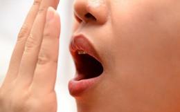 Hôi miệng chữa mãi không khỏi: Đây là 5 nguyên nhân và cách chữa chính xác bạn nên biết