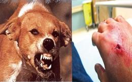 Hà Nội: 2 người chết vì bệnh dại và liên cầu lợn