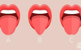 7 vấn đề về sức khỏe phản ánh qua lưỡi của bạn: Hãy cẩn thận kiểm tra nếu có bất thường