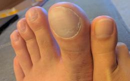 Ngón chân cái to hơn và bí mật về quá trình tiến hóa của con người