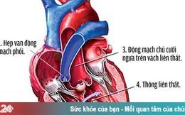 Những điều cần biết về bệnh tim bẩm sinh Tứ chứng Fallot