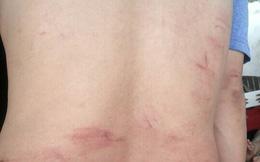 Người đàn ông bị hành hung sau khi trả lời phóng sự điều tra VTV9