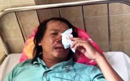 """Trộm chó dùng súng điện bắn """"hiệp sĩ"""" ở Đồng Nai"""