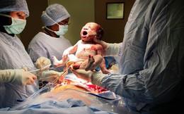 Cuối cùng thì cũng đã tìm ra lý do vì sao bé sinh mổ hay quấy khóc hơn bé sinh thường