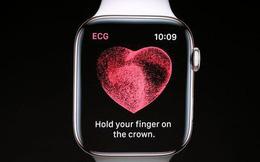 Điện tâm đồ là gì? Tại sao Apple lại đưa nó lên chiếc Apple Watch mới của mình? Nó hơn gì công nghệ cũ?