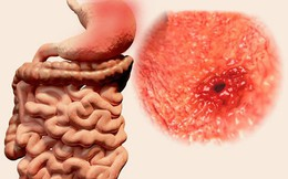 7 triệu chứng ung thư sớm không gây đau: Chỉ cần có 1 triệu chứng là bạn phải đi khám ngay
