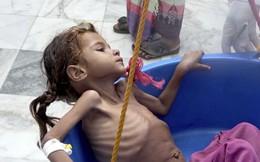 Người dân Yemen phải ăn lá cây vì đói do chiến tranh