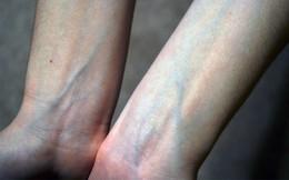 Cơ thể nổi gân xanh: Dấu hiệu chớ coi thường, nên đi khám ngay