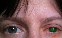 Mù mắt chỉ vì 20 phút đeo kính áp tròng xuống hồ bơi