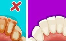 6 mẹo đơn giản giúp bạn có hàm răng trắng sáng