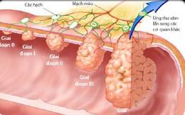 6 yếu tố làm tăng nguy cơ ung thư ruột: Rất nhiều người mắc phải nguyên nhân thứ 6