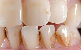 Răng vàng ố và xỉn màu là do 5 nguyên nhân tiềm ẩn sau đây mà ít ai ngờ đến