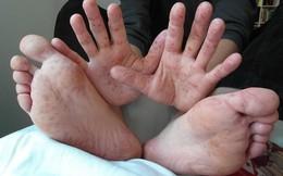 Đã có 6 trẻ tử vong do tay chân miệng: Dấu hiệu cảnh báo bạn phải đưa con đi cấp cứu ngay
