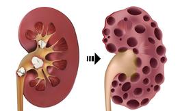 Thận là bộ phận nội tạng quan trọng: Hơi thở có mùi bất thường này là thận đang có bệnh