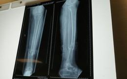 """Yêu cầu """"kỳ lạ"""", người phụ nữ gãy chân bị nhiều bệnh viện từ chối"""
