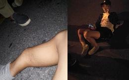 Chụp chân gãy khoe lên Facebook, thanh niên bất ngờ bị nhân chứng tại hiện trường bóc mẽ
