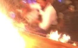Nhà hàng biểu diễn quá tay, lửa táp thực khách bỏng nặng