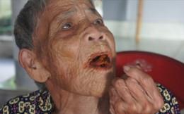 Cụ bà 98 tuổi mọc răng bất thường ở Hà Tĩnh