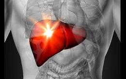 Tắc động mạch có thể dẫn đến đột quỵ: Cách làm sạch động mạch tự nhiên bằng quả bơ