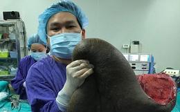 Ca mổ ngồi bóc khối u 15kg dính trên lưng người đàn ông