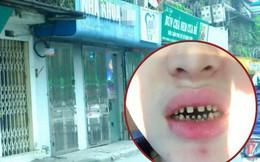 Hình ảnh hàm răng hư hỏng của cô gái sau 2 năm bọc răng sứ gây xôn xao
