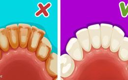 Ghi nhớ 6 mẹo đơn giản để có một hàm răng trắng như sứ