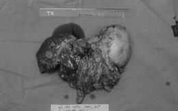 """Bác sĩ """"liều mình"""" phẫu thuật cứu sống bệnh nhân mang khối u gan """"khủng"""" 2,5kg"""
