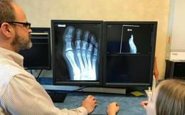 """Con than đau chân, cứ nghĩ con """"làm quá"""" cho đến khi xem phim x-quang, mẹ hoảng sợ và thấy tội lỗi"""