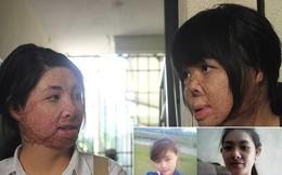 2 cô gái bị chồng đốt tựa vào nhau tìm lại hình hài