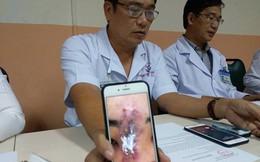 Nữ sinh 19 tuổi bị hoại tử nặng sau khi nâng mũi