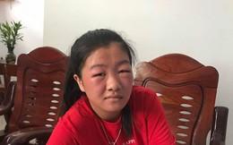 Cô gái sưng phù mặt vì bôi rượu thuốc lên mặt cho trắng: Khuyến cáo của chuyên gia không ai được bỏ qua!