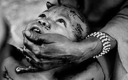 Tục lệ khắc dấu lên đầu trẻ em để đánh dấu thành viên gia tộc ở Châu Phi khiến ai chứng kiến cũng rùng mình