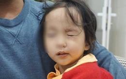 Rét đậm khắc nghiệt, nhiều trẻ liệt mặt, méo miệng vì nhiễm lạnh đột ngột