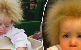 Bé gái 8 tuổi có mái tóc 'dựng đứng' giống nhà bác học thiên tài Albert Einstein