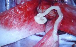 Bệnh nhân bị ký sinh trùng 7cm chui vào não