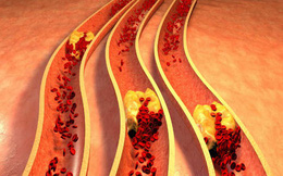 Bài thuốc giảm cholesterol trong vòng 1 tháng