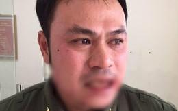 """Nhân viên an ninh sân bay Nội Bài bị """"cò"""" taxi đánh gãy răng"""