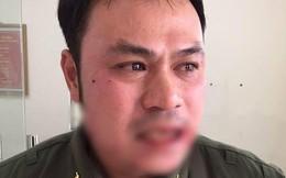 Tạm giữ hình sự người phụ nữ đánh gãy răng nhân viên an ninh Cảng hàng không Nội Bài