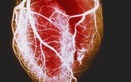 Nguyên nhân dẫn đến một cơn đau tim: Những điều bạn thực sự nên biết càng sớm càng tốt