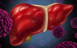 Số người mắc ung thư gan ở Việt Nam rất cao: 7 yếu tố nguy cơ cũng nên biết để phòng