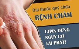 Bệnh chàm eczema: Dấu hiệu và cách chữa chặn đứng nguy cơ tái phát