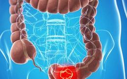 Triệu chứng phổ biến của polyp đại trực tràng, nếu phát hiện nên khám để hạn chế biến chứng