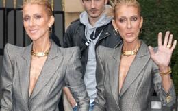 Hình ảnh Celine Dion gầy trơ xương, già như bà cụ khiến người hâm mộ lo lắng