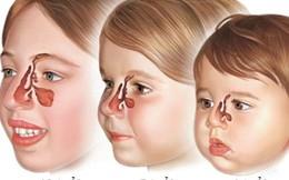 Viêm xoang ở trẻ em có gây biến chứng?