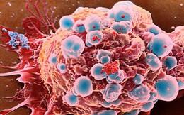 Chuyên gia ung bướu: Có những khối ung thư đẻ ra con, cháu rồi tự biến mất