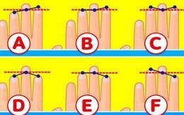 Tố chất bộc lộ qua độ dài 3 ngón tay trên bàn tay trái: Nếu ở dạng E, bạn rất thông minh, quyến rũ