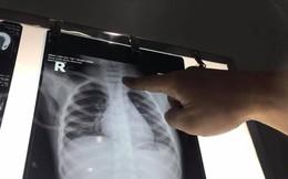 Giật mình: Bé trai 3 tuổi đã mắc ung thư di căn